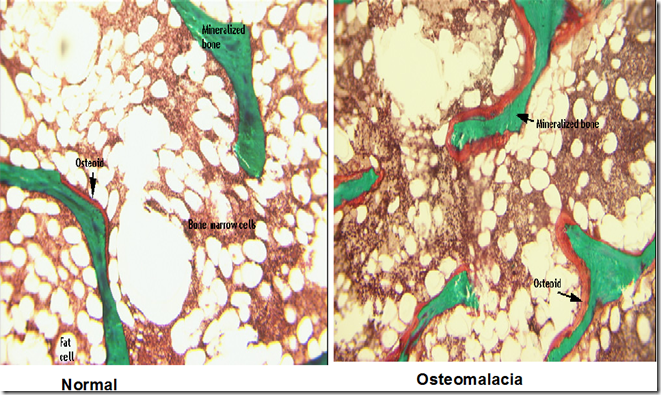 What is the histology of rickets disease?